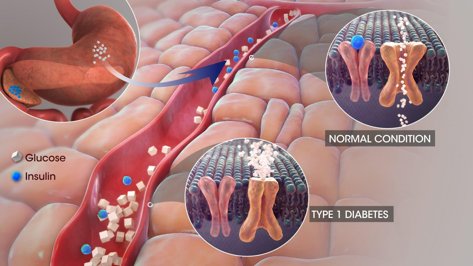Diabetes CBD,CBD for Diabetes