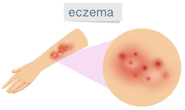 Can CBD Help Eczema?