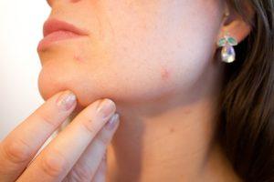 CBD for Acne, CBD oil for Acne