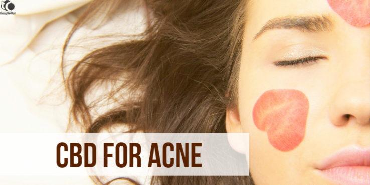 CBD for Acne,CBD oil for Acne