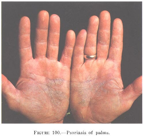 Does CBD Oil Work for Psoriasis?,cbd oil psoriasis