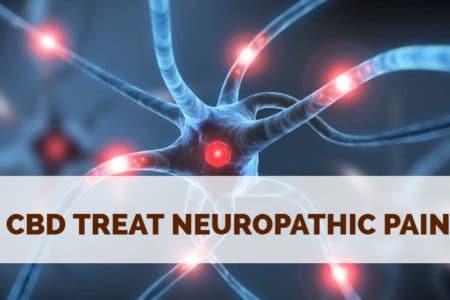 How Can CBD Treat Neuropathic Pain?
