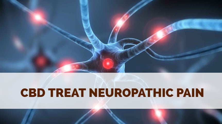 CBD Treat Neuropathic Pain