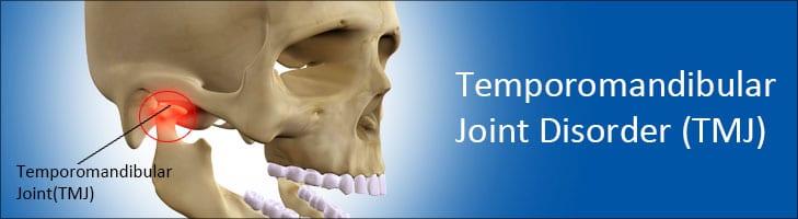 CBD For Dental Pain