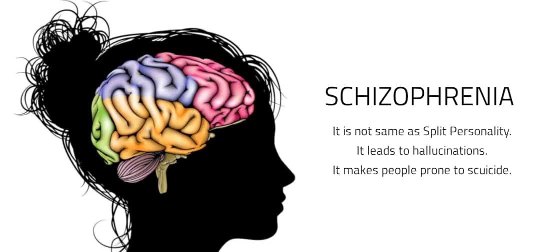 CBD Schizophrenia