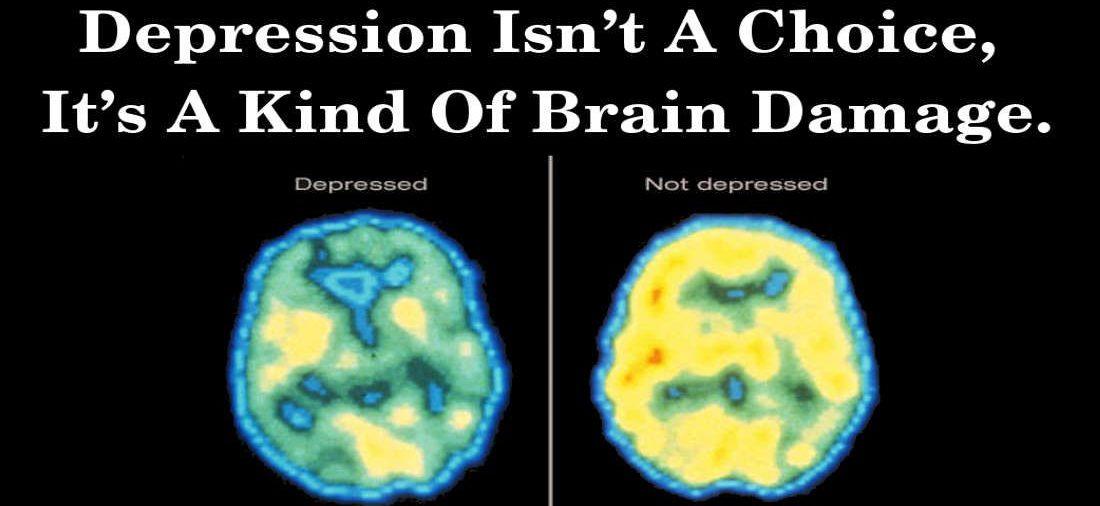 CBD For Brain Damage