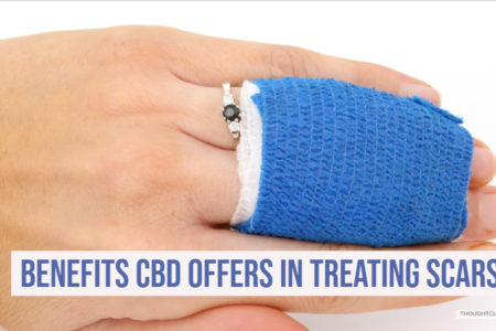 Benefits CBD Offers In Treating Scars
