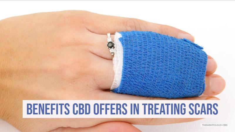 CBD Scars Treatment
