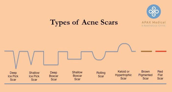 Scars Type