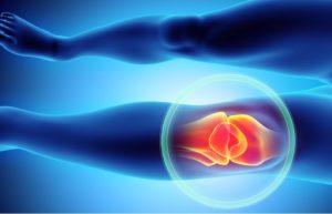 cbd pain balm for Hyperextension knee pain