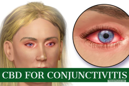 How Can CBD Treat Conjunctivitis Pink Eye Effectivily