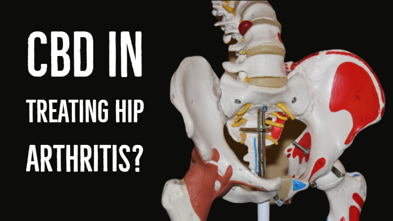 CBD For Hip Arthritis