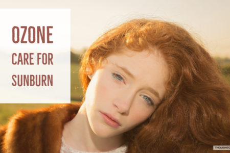 CBD Sunburn Cream   Effective Remedies To Treat Sunburn