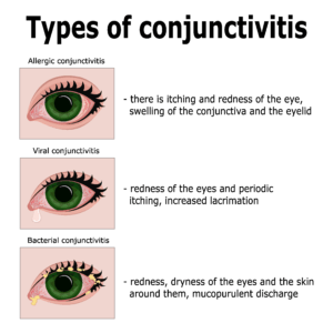 Types of pink eye