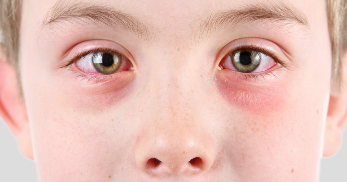 cbd for Pink eye