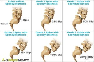 grades for spondylolisthesis in spine