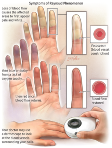 CBD For Raynaud's Syndrome Treatment