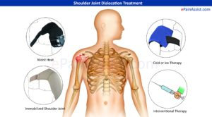 treatment of dislocated shoulder
