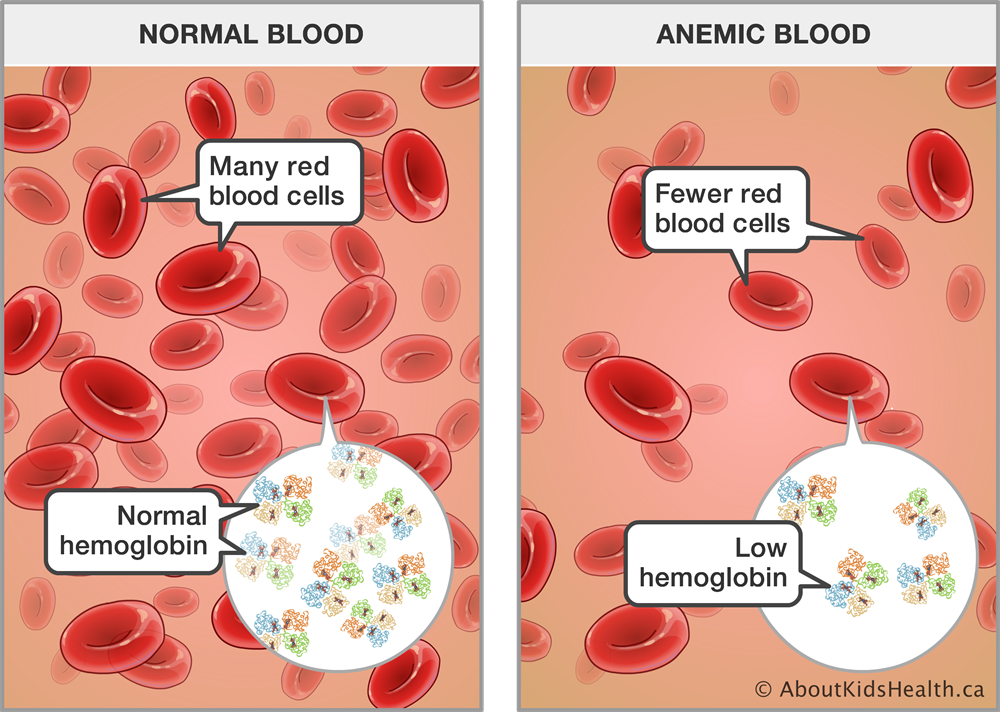 What is Hemophilia? Does CBD assist in fighting with Hemophilia?