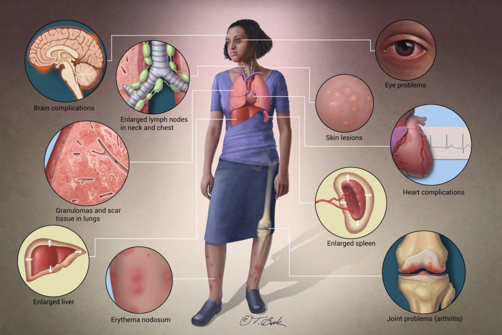 CBD Oil For Sarcoidosis,Symptoms of Sarcoidosis
