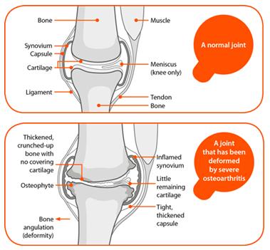 CBD FOr Knee Arthritis