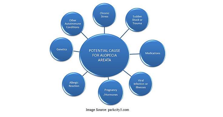 Causes Of Alopecia Areata