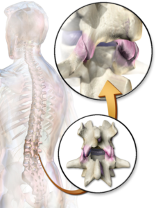 Facet Joint Causes