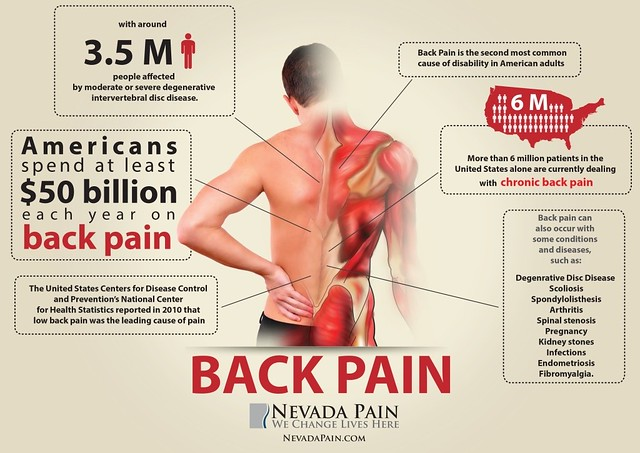 Back Pain Scoliosis