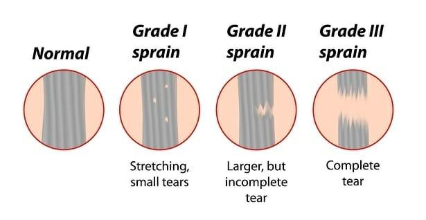 Hamstring Grade
