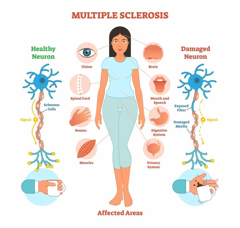 Multiple Sclerosis, Neurological Disorder