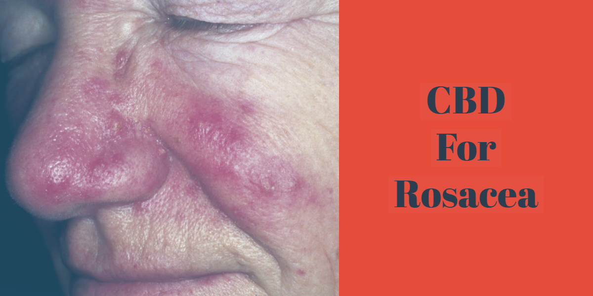 Here's How CBD Cream May Help With Rosacea
