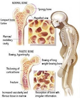 Paget Disease of bones