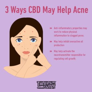 CBD Capsules for Acne